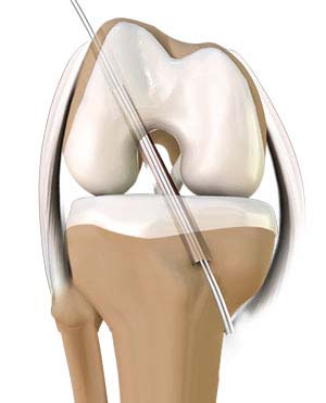 ACL Reconstruction - Anterior Cruciate Ligament Tears